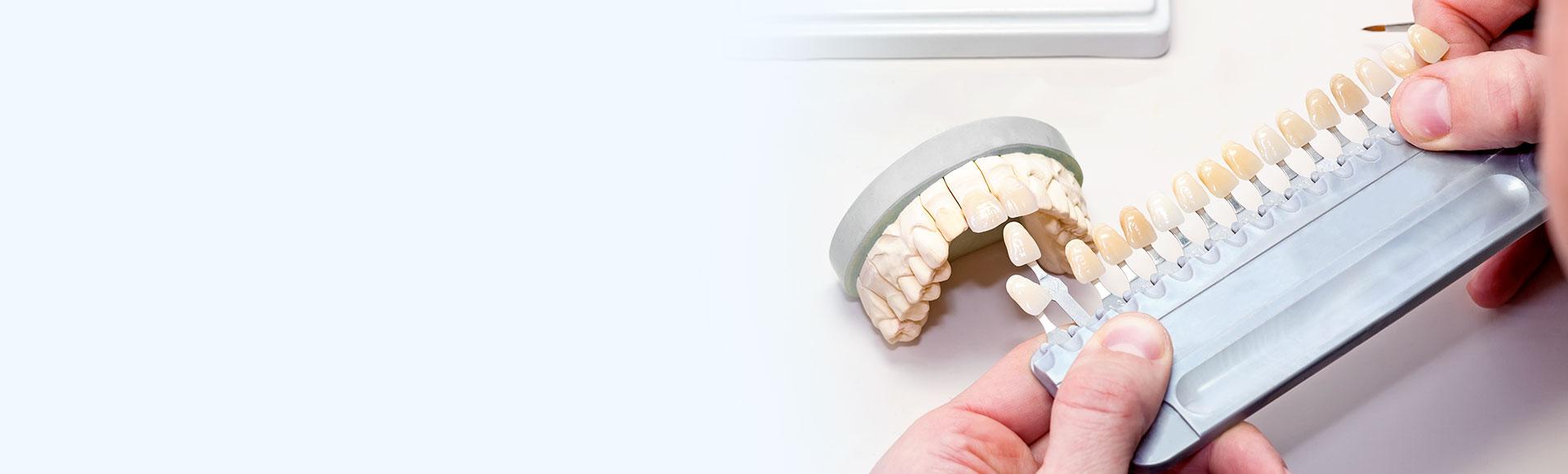Hochwertige Veneers in Hamburg – für gerade Zähne