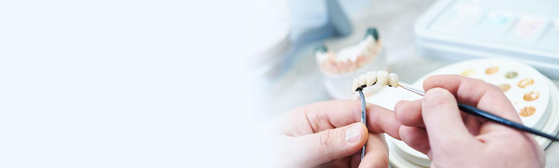 Provisorischer Zahnersatz – Zahnkronen und Zahnbrücken